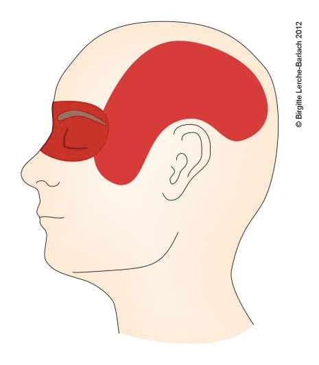 Hodepine Bak Øyet